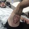 Австралиец получил ожог ноги в результате возгорания Iphone