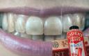 Йод против фтора и прочие секреты мировой стоматологической индустрии